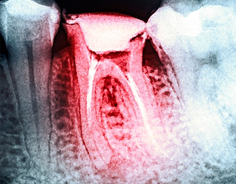 X-ray of damaged tooth prior to extraction