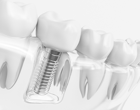 Animated dental implant supported dental crowns