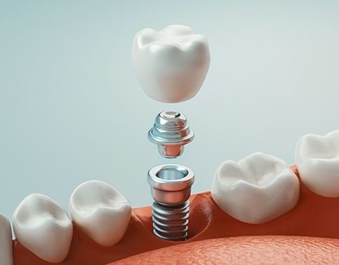 Animated dental implant tooth replacement process