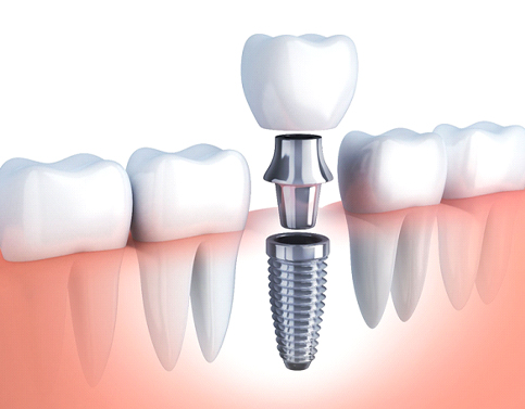 diagram of dental implant abutment and dental crown