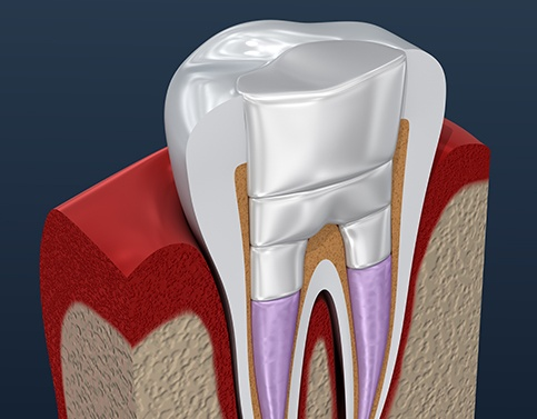 Aniamted tooth after root canal therapy