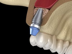 dental implant in Edison replacing upper tooth